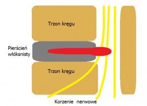 Przepuklina jądra miażdżystego