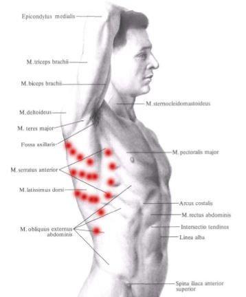Bol Pod Lopatka Objawy Przyczyny Leczenie Bolu Lekarz Od