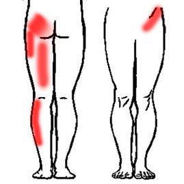 Staw krzyżowo biodrowy - promieniowanie bólu