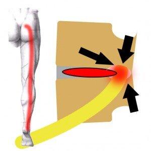 stenoza ciasnota ledzwiowa kanalu kregowego i terapia McKenziego
