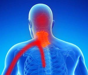 Rwa barkowa - promieniowanie bólu