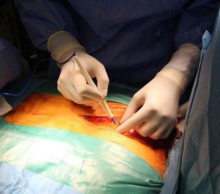 Rwa kulszowa - leczenie operacyjne