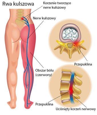 Zapalenie nerwu kulszowego