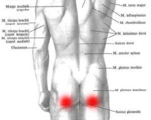 Guz kulszowy – ból pośladka i ból z tyłu uda pod pośladkiem