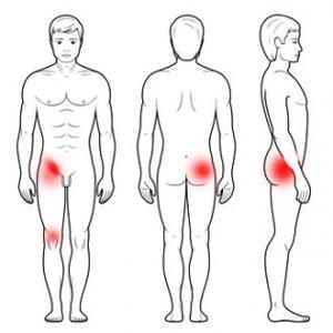 Ból stawu biodrowego, ból w biodrze i pośladku