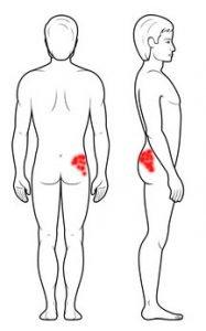 Mięsień pośladkowy średni - punkty spustowe, ból pośladka