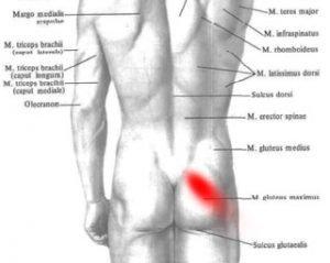 Mięsień gruszkowaty – ból w pośladku