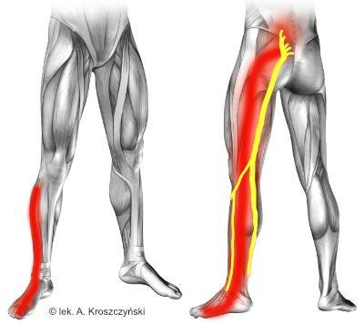 Zapalenie i ból nerwu kulszowego