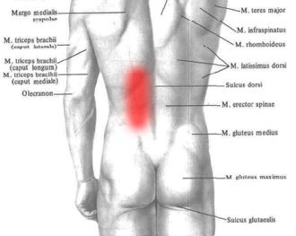 Naderwanie mięśnia pleców