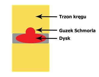 Guzki Schmorla
