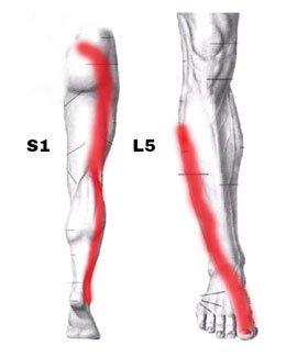 Ból nogi - objaw rwy kulszowej