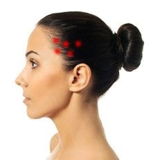 Punkty spustowe migrena