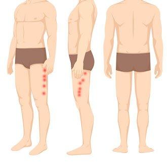 Punkty spustowe w rwie kulszowej z boku uda