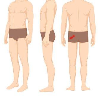 Mięśnień gruszkowaty punkty spustowe w rwie kulszowej