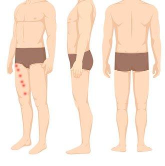 Punkty spustowe w mięśniu krawieckim