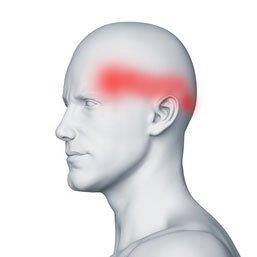Szyjnopochodny ból głowy