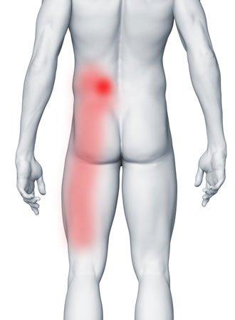 Ból stawów międzywyrostkowych, gdzie boli?