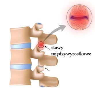 Stawy międzykręgowe międzywyrostkowe kręgosłupa