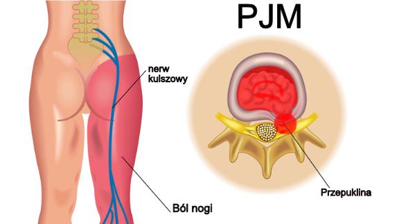 PJM w opisie rezonansu