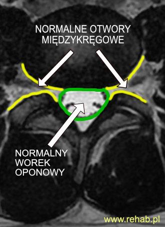 Kanał kręgowy bez cech stenozy