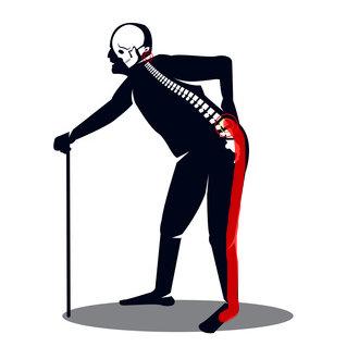Zwężenie kanału kręgowego