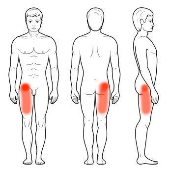 Uszkodzenie obrąbka stawu biodrowego - ból