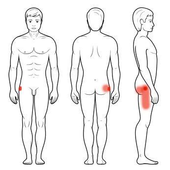 Zapalenie kaletki krętarza większego kości udowej