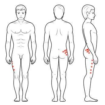 Punkty spustowe - ból biodra