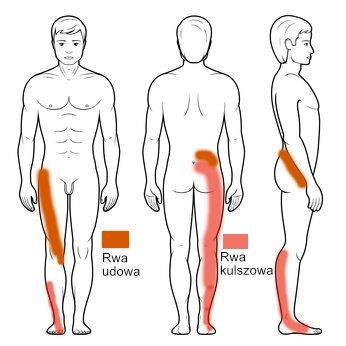 Ból biodra, rwa kulszowa i udowa