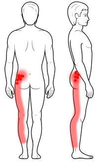 Punkty spustowe w mięśniu pośladkowym średnim