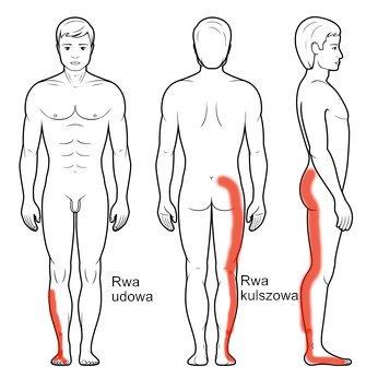 Rwa kulszowa - promieniowanie bólu