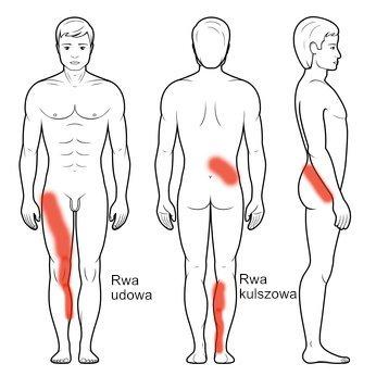 Rwa udowa promieniowanie bólu