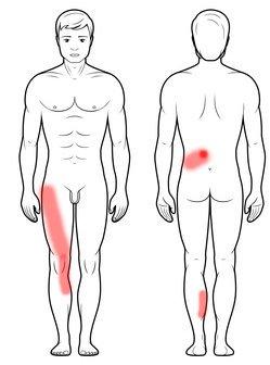 Ból nogi w rwie udowej