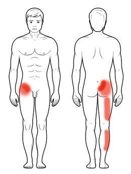 Staw krzyżowo biodrowy - ból