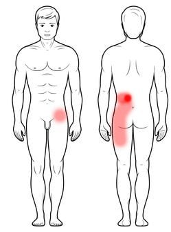 Stawy międzywyrostkowe - ból nogi