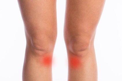 Gęsia stopka – mapa bólu kolana