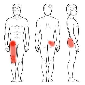 Mapa bólu w jałowej martwicy głowy kości udowej