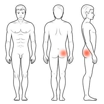 Entezopatia krętarz mapa bólu biodra