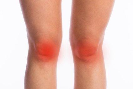 Zwyrodnienie kolana - mapa bólu