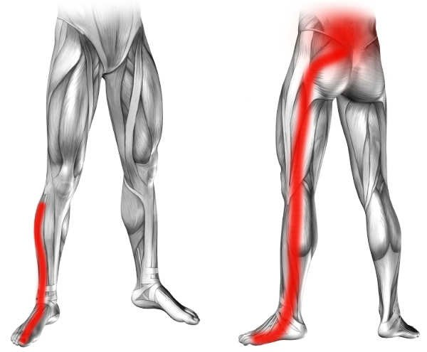 Objawem rwy kulszowej jest ból w przebiegu nerwu kulszowego