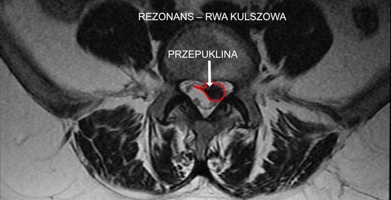 Rwa kulszowa – jaki rezonans