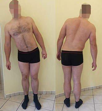 Rwa kulszowa objaw skrzywienia kręgosłupa – skolioza