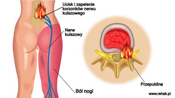Przyczyny rwy kulszowej – dyskopatia i zapalenie nerwu kulszowego