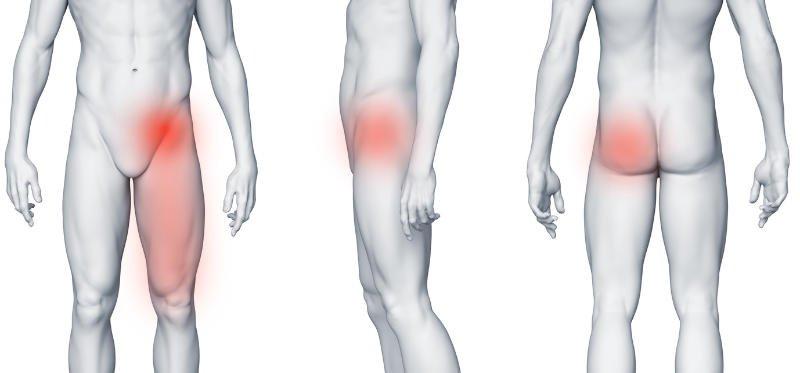 Staw biodrowy – ból przy przewracaniu z boku na bok