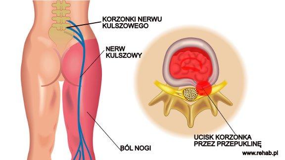 Zapalenie korzonków nerwowych – gdzie są korzonki