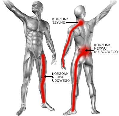 Zapalenie korzonków nerwowych – jak bolą korzonki?