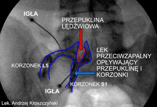 Przepuklina lędźwiowa – leczenie bezoperacyjne