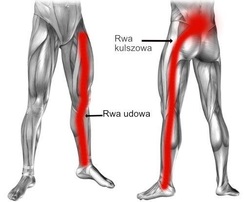 Ból kręgosłupa lędźwiowego i rwa kulszowa to objawy dyskopatii lędźwiowej