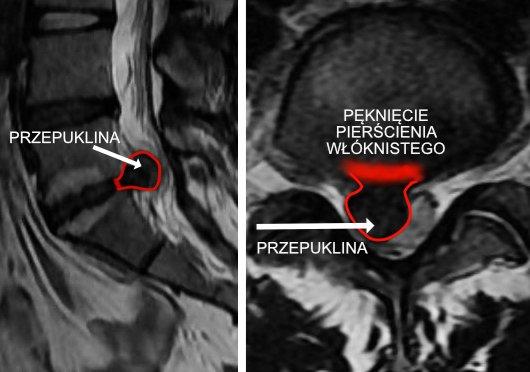 Dyskopatia – przepuklina kręgosłupa