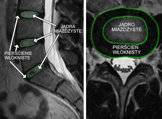 Krazek miedzykregowy kręgosłupa lędźwiowego bez cech dyskopatii